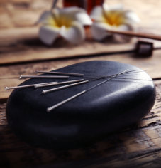 acupuncture pins
