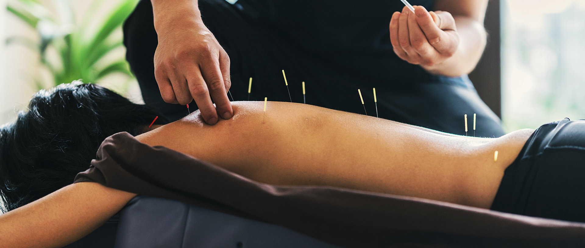 acupuncture needles being place at the back