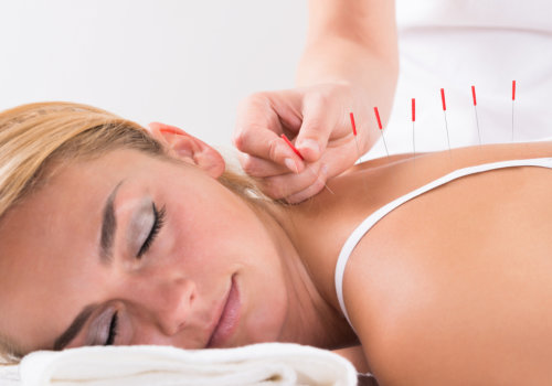 acupuncture therapy on customer back at salon